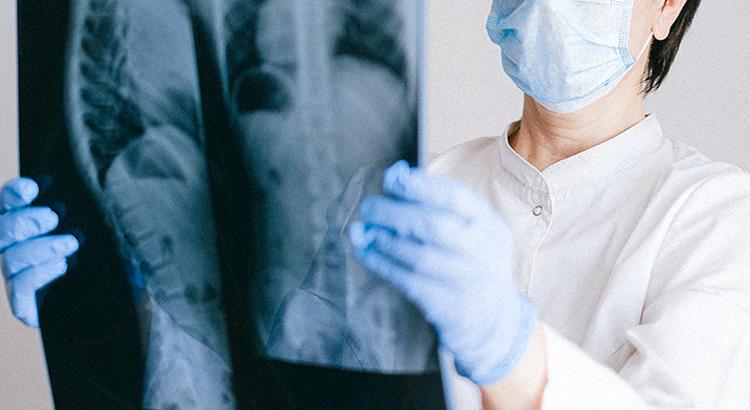 Röntgen-Skelett