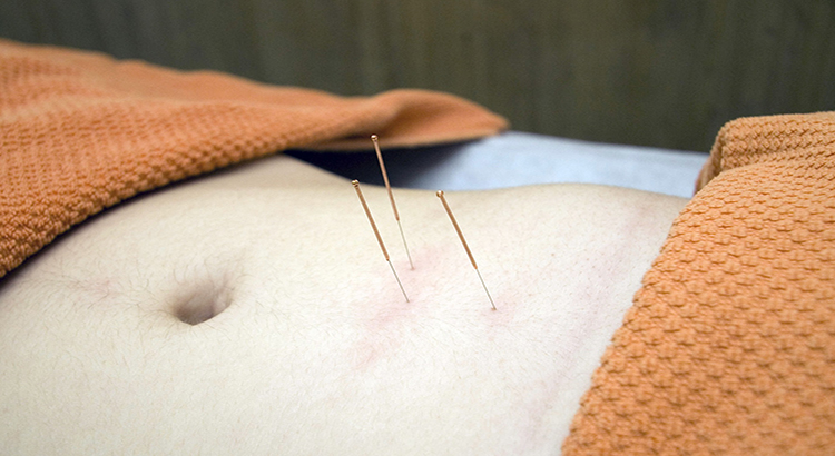 Bauch, Nadeln, Akupunkturvorgang